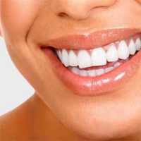 Sfatul medicului stomatolog - Dr. Ruxandra Ciltea - Mituri si adevaruri despre implantul dentar