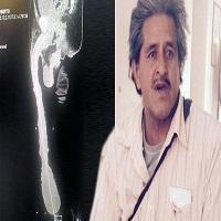 La zi pe Metropotam - Barbatul cu cel mai mare penis din lume refuza sa isi faca operatie de micsorare si sa aiba o viata sexuala normala